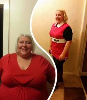 lost weight with hypontherapy gastric band